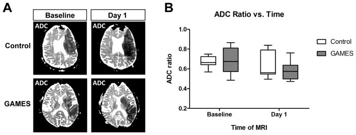 Glyburide is associated with attenuated vasogenic edema in stroke patients.